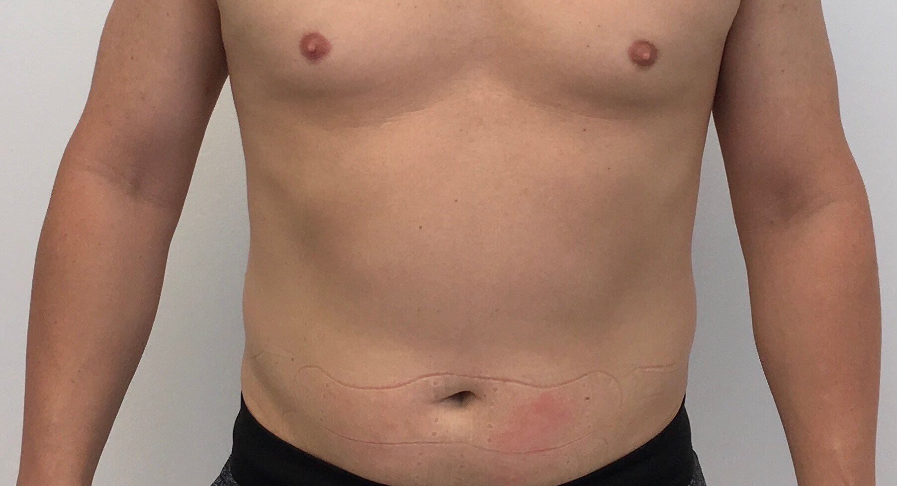 SculpSure After