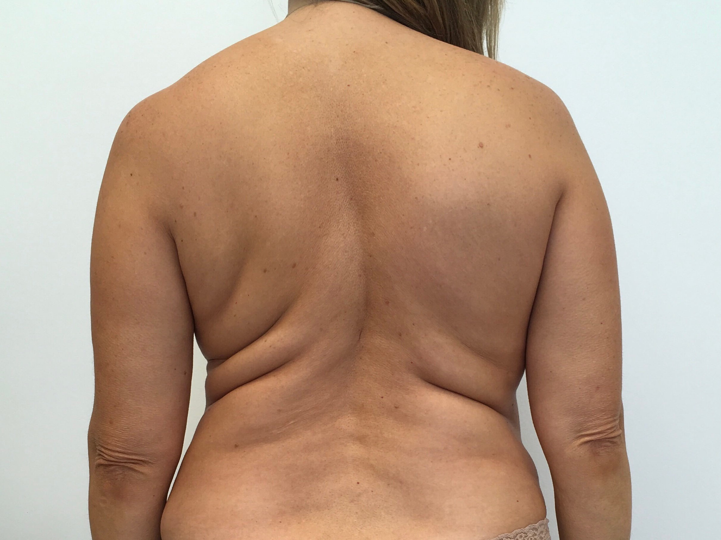Liposuction - Back Before