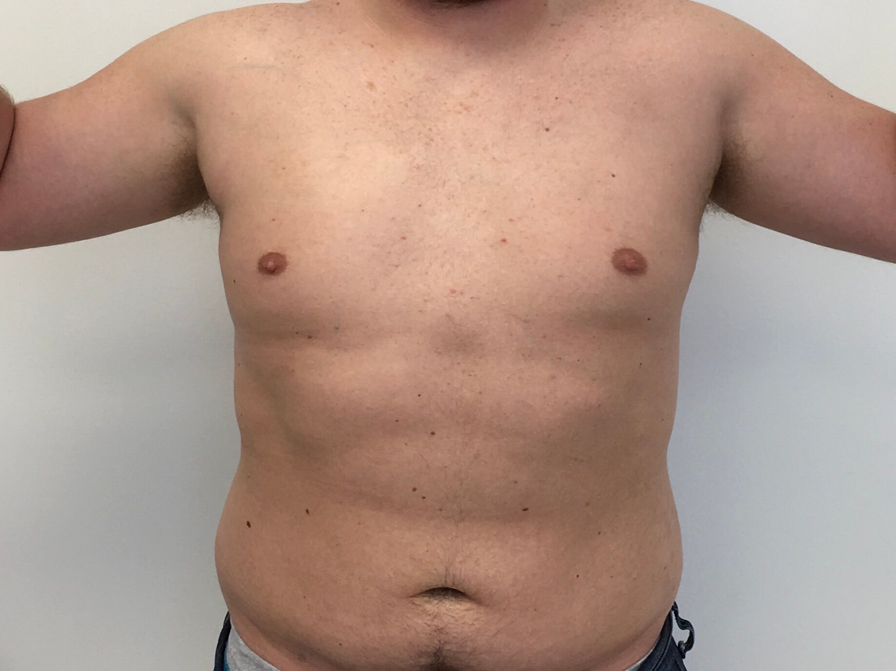 Liposuction - Trunk After