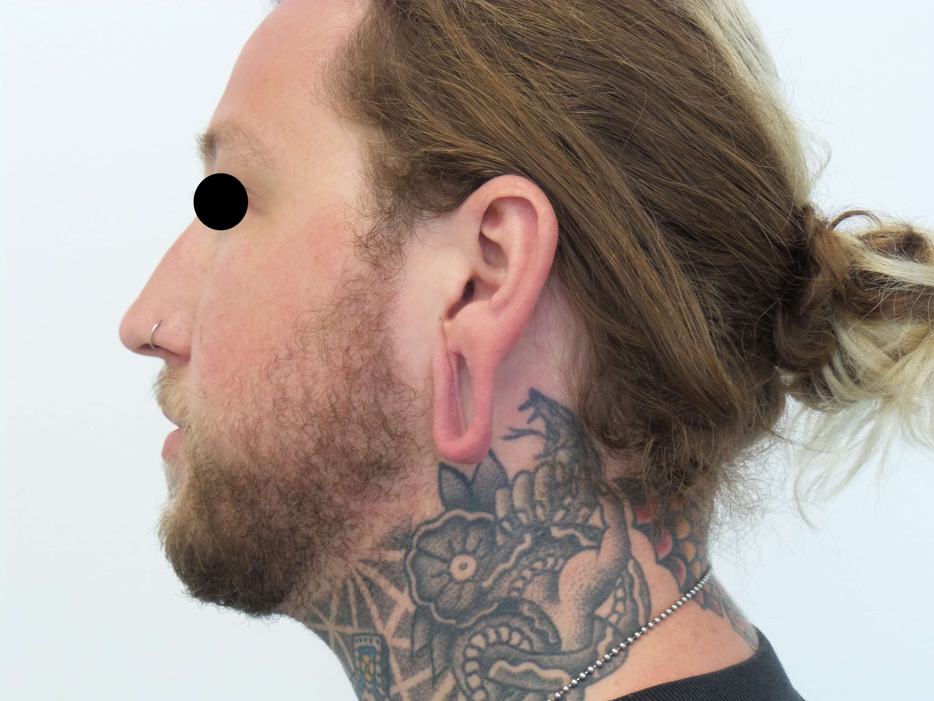 Earlobe Reconstruction Before