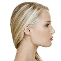 Submental/Jawline Liposuction